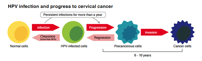 HPV infection and progress to cervical cancer