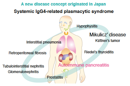 Systemic IgG4-related diseases